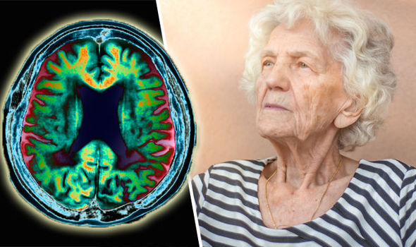 Alzheimer-s-disease-The-study-describes-in-detail-the-appearance-of-key-hallmark-Alzheimer-s-proteins-740265