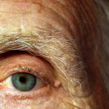common-eye-diseases