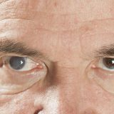 OlderManWithCataractInOneEye.jpg.653x0_q80_crop-smart