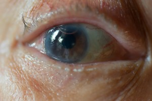 prevent-cataracts-naturally-home-remedies-300x200